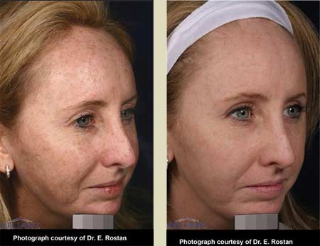 Fraxel laser treatment before & after pictures
