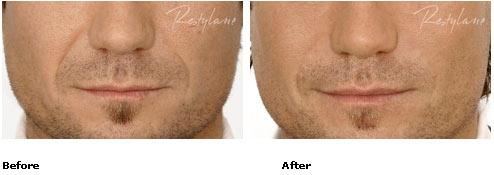Restylane - Nasolabial Folds - Before & After Pictures