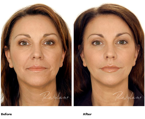 Restylane - Full Face - Before & After Pictures