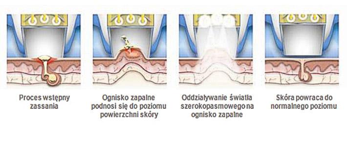 Acleara - leczenie trądziku Chicago
