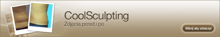 coolsculpting-before-and-after-pictures-pl