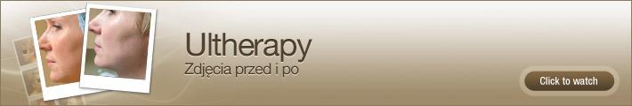 Ultherapy – Zdjęcia przed i po