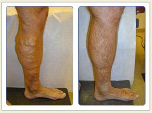 Varicose veins and broken vessels removal 01